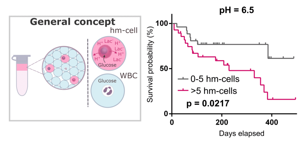 Probing single-cell metabolism reveals prognostic value of highly metabolically active circulating stromal cells in prostate cancer